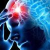 Ученые нашли связь между риском инсульта и годом рождения