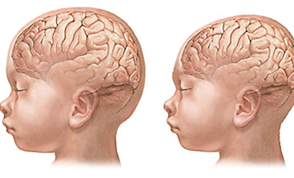 Вирус «пожирает» мозг нерожденных детей— Ученые
