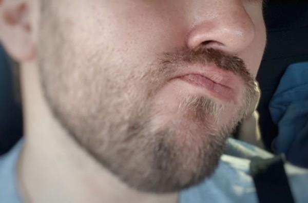 __ нос, рот, подбородок, борода, усы